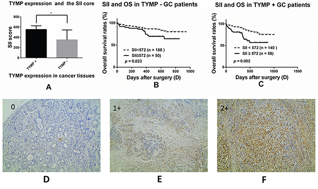 The prognostic significance of the SII in GC patients with different thymidine phosphorylase (TYMP) expression subgroups.