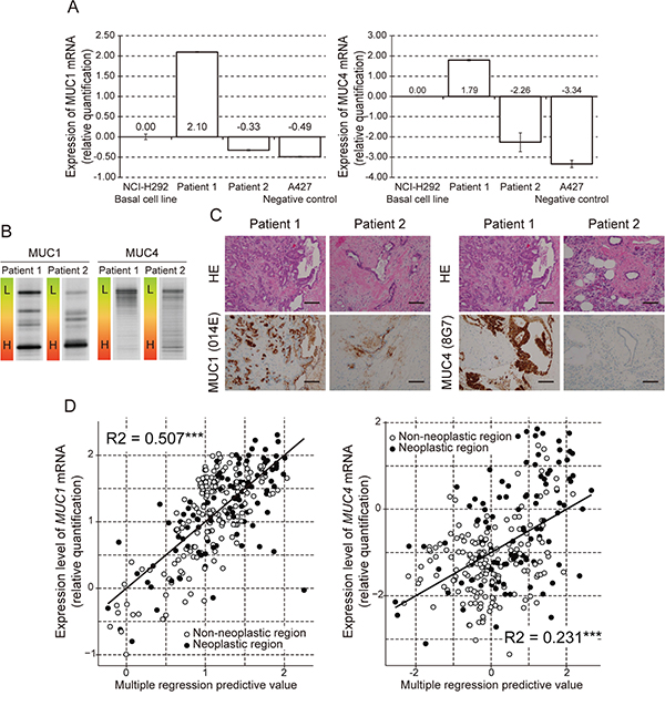 Analysis of MUC1 and MUC4 expression and methylation status in human pancreatic samples.