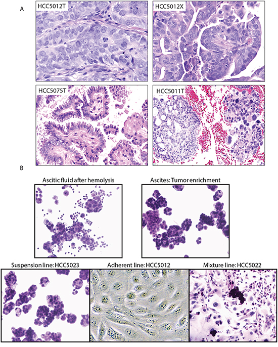 Representative histologies and cell lines generated from OVCA malignant effusions.