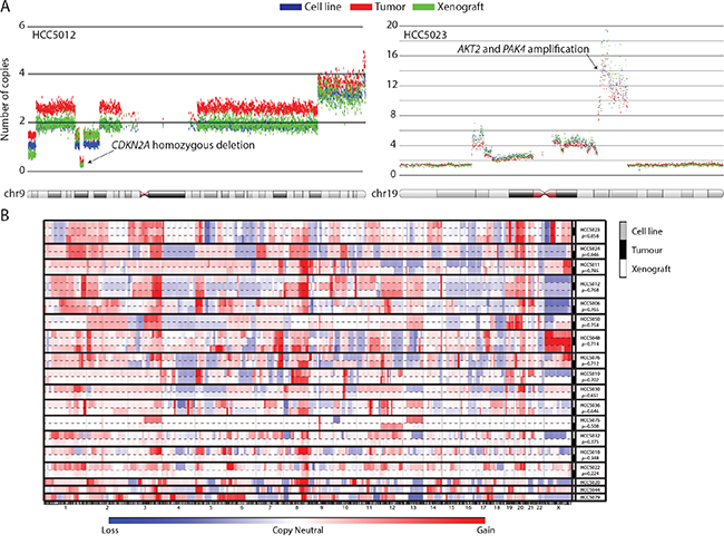 UTSW cell line and xenograft models recapitulate the genomic features of their parental tumors.