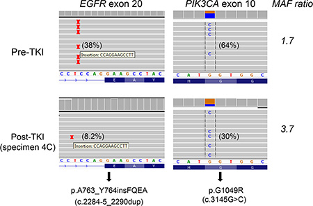 PIK3CA p.G1049R and EGFR p.A763_Y764insFQEA mutations in both pre-TKI (upper panel) and post-TKI (lower panel) specimens.