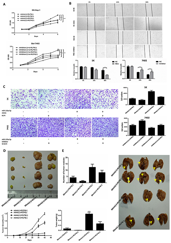 MicroR-135a-5p promotes proliferation and metastasis in HCC cells by down-regulating KLF4.