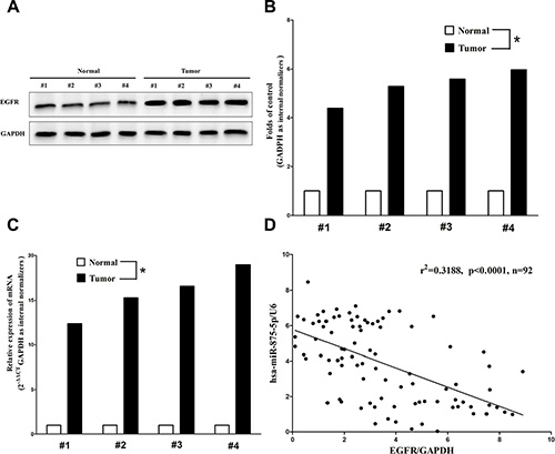 Expression of EGFR is up-regulated in primary human CRC and negatively expressed related to miR-875-5p.