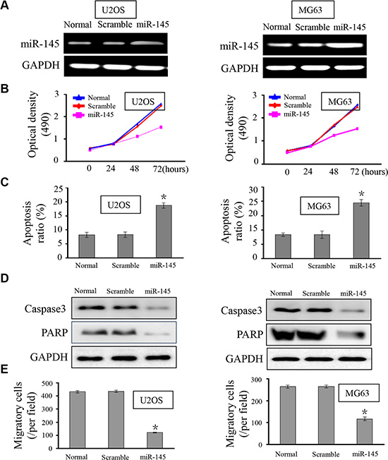 miR-145 suppresses OS cell proliferation, apoptosis and migration.
