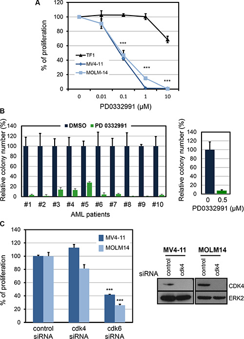 Pharmacological inhibition of CDK6 in human AML cell lines and in primary human FLT3-ITD AML.