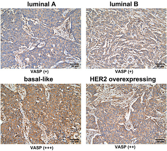 VASP expression in four subtypes of breast cancer.