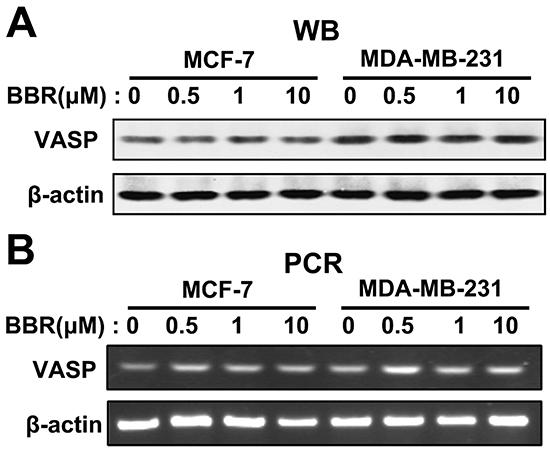 Berberine does not affect expression of VASP