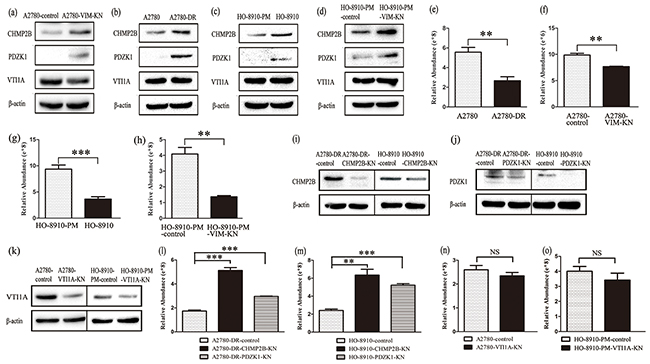 Vimentin silencing decreased the cellular cisplatin accumulation.