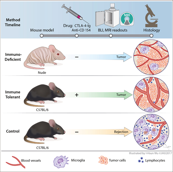 Mutation-Specific T Cells for Immunotherapy of Gliomas | NEJM