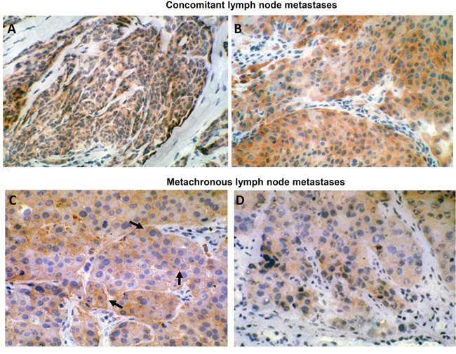 HER-3 expression in human metastatic melanoma. (A) (160X