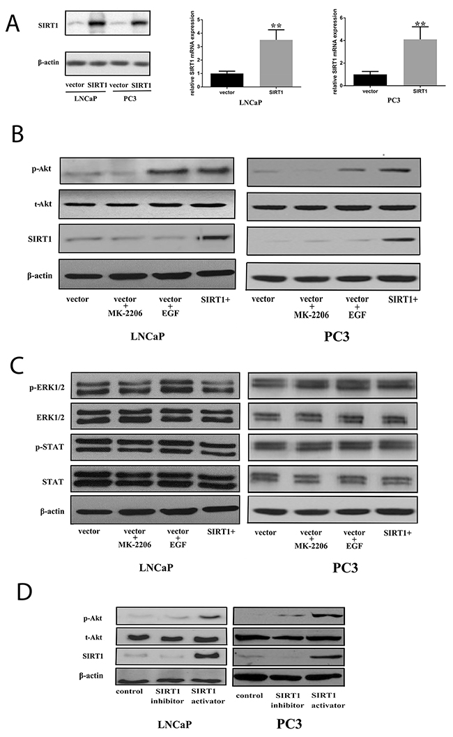Aging   The expression of PDGF-BB predicts curative effect