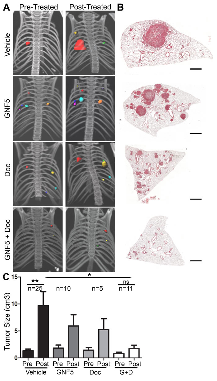 ABL kinase inhibition promotes lung regeneration through