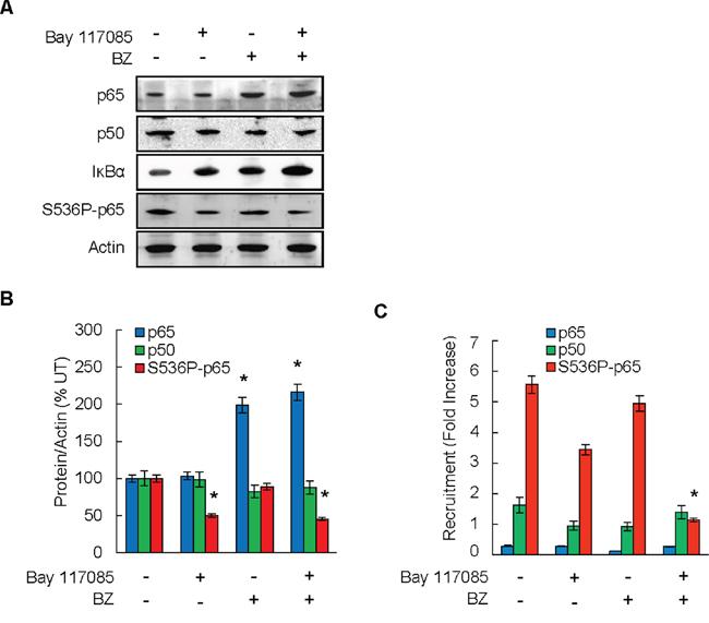 IKK inhibition increases bortezomib effectiveness in