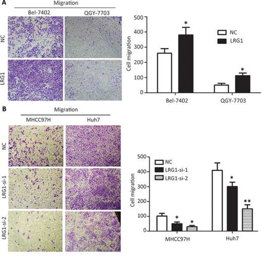 Ectopic expression of TIMP2 suppressed HCC progression and