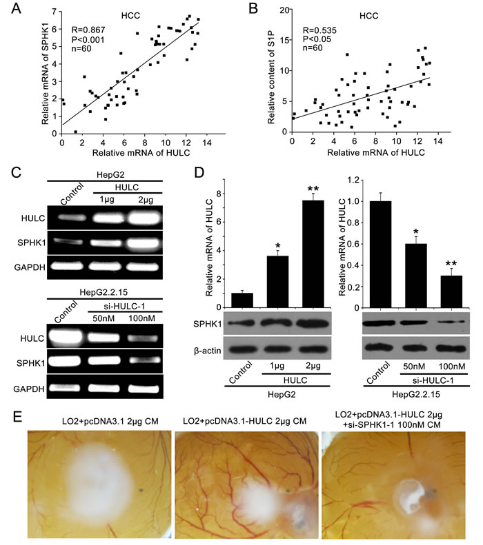 Long non-coding RNA UCA1 promotes glycolysis in bladder