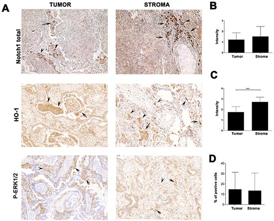 Prostate cancer PC3 cells undergo epithelial-mesenchymal