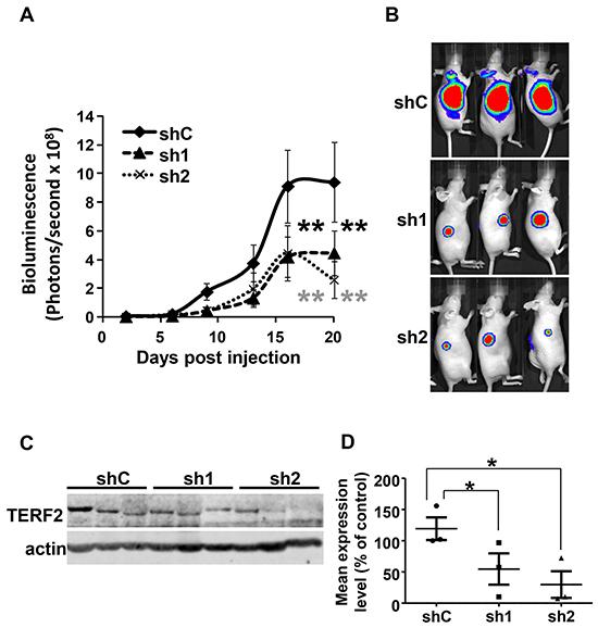 TERF2 down-regulation decreased tumor growth.