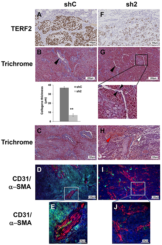 TERF2 down-regulation destabilized tumor vessels and induced fibrosis.