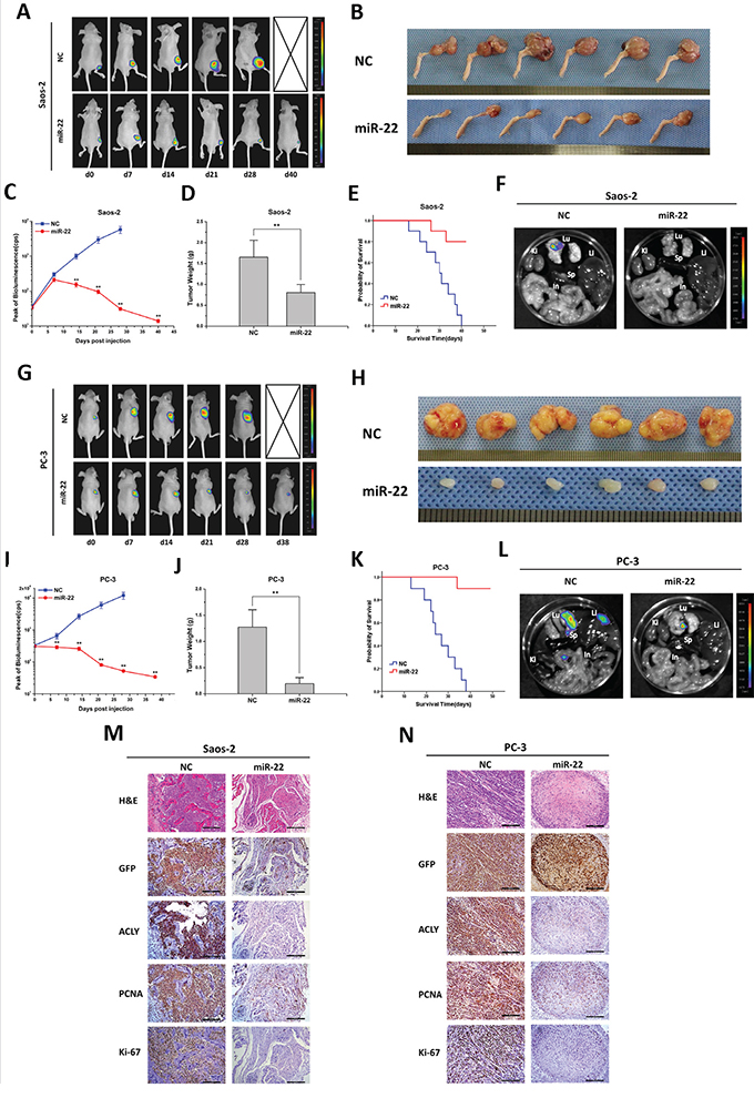 miR-22 suppresses tumor growth and metastasis in animal models of osteosarcoma and prostate cancer.