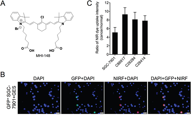 Uptake of MHI-148 dye by human gastric cancer cells.
