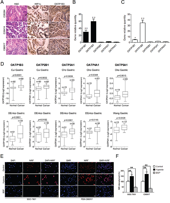 Mechanisms of NIRF dye uptake by gastric tumor cells and xenografts.