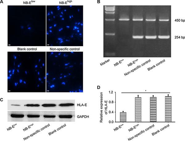 HLA-E expression in neuroblastoma cells.