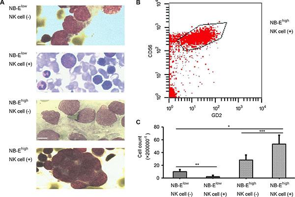 Metastatic neuroblastoma in bone marrow.