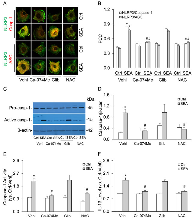 Effects of cathepsin B inhibition, potassium channel blockade or ROS scavenging on SEA-induced formation and activation of NLRP3 inflammasomes in HSCs.