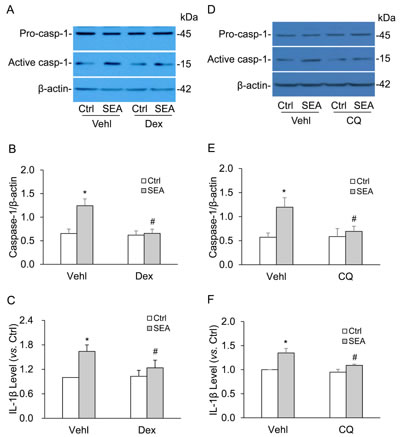 Lysosome membrane stabilizer abolished the SEA-induced caspase-1 activation and IL-1β production in HSCs.