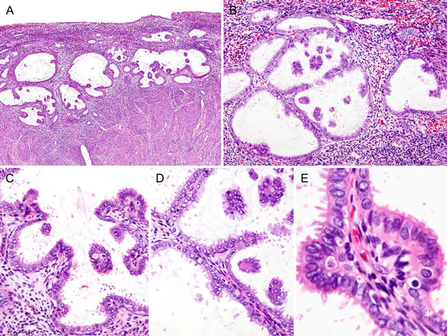 Histopathological findings of Case 1: Simple papillary proliferation, incidentally detected.