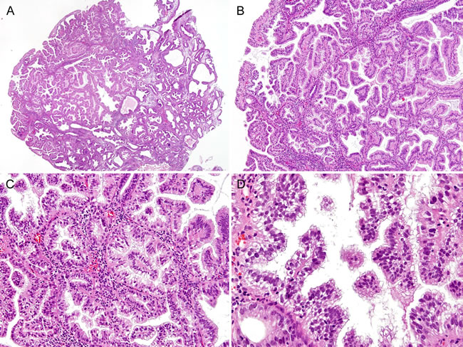 Histopathological findings of Case 2: Complex papillary proliferation, extensively involving an endometrial polyp.