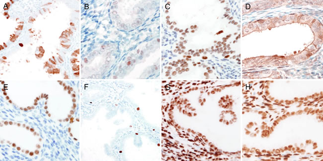 Immunohistochemical findings of endometrial papillary proliferation.
