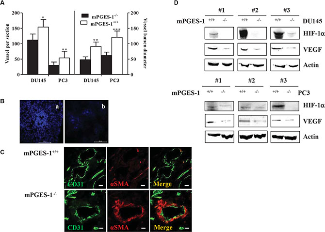 mPGES-1 induces tumor angiogenesis in vivo.