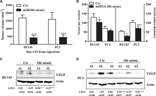 miR-186 controls tumor growth and angiogenesis in vivo.