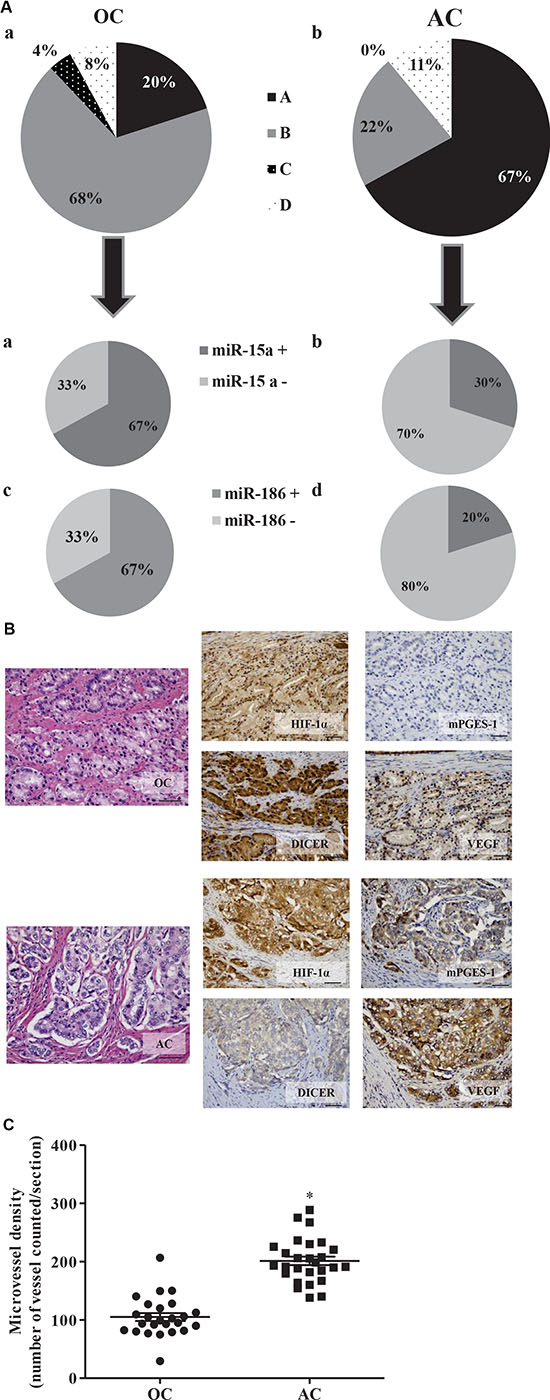 mPGES-1 expression in human prostate cancers is associated with elevated CD31, VEGF, and HIF-1α expression and reduced Dicer, miR-15a and -186 expression.