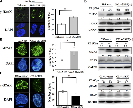 SKP2 increased DNA damages clearance upon ionizing radiation in human cervical cancer cell lines.