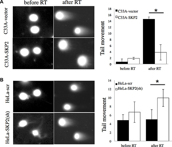 SKP2 enhances the responses of cervical cancer cells to DNA damage after irradiation.