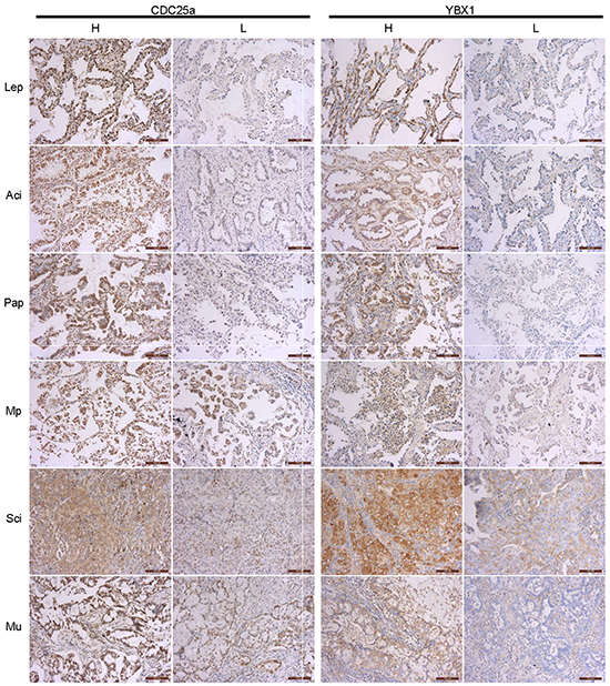 Immunohistochemical analyses of CDC25a and YBX1 proteins in different subtypes of lung adenocarcinoma.