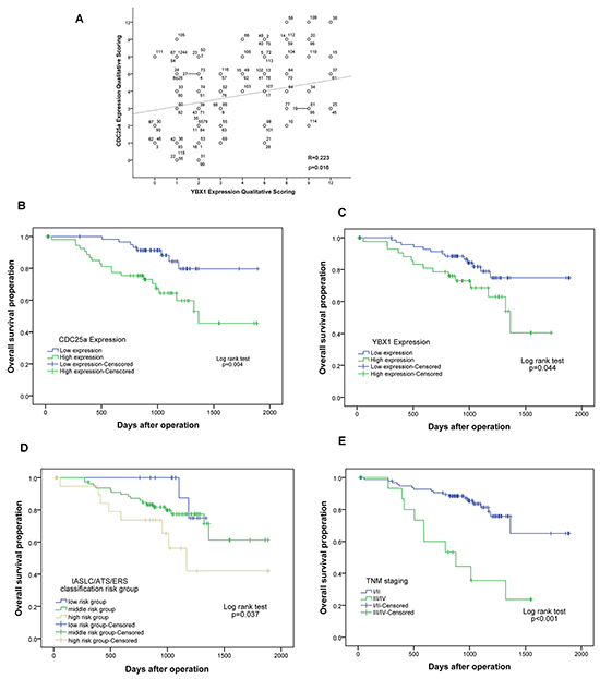 The scattered/correlation blot between CDC25a and YBX1 expression and survival curves of CDC25a/YBX1 expression, IASLC/ATS/ERS classification and TNM stages in 116 patients with lung adenocarcinoma.