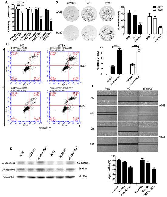 YBX1 knockdown inhibited the growth and migration of lung adenocarcinoma cells and induced apoptosis.