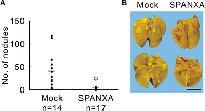 SPANXA attenuates metastasis in vivo.