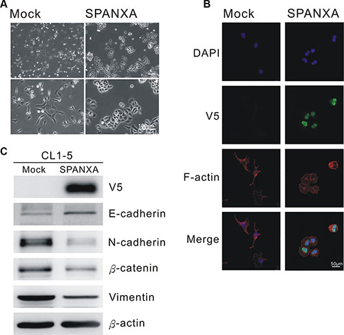 SPANXA inhibits EMT process.