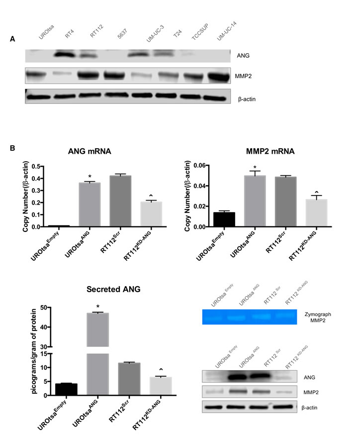 ANG overexpression in human bladder cell lines leads to MMP2 expression.