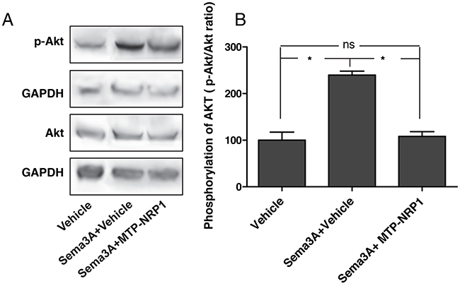 Oncotarget | Inhibition of primary breast tumor growth and