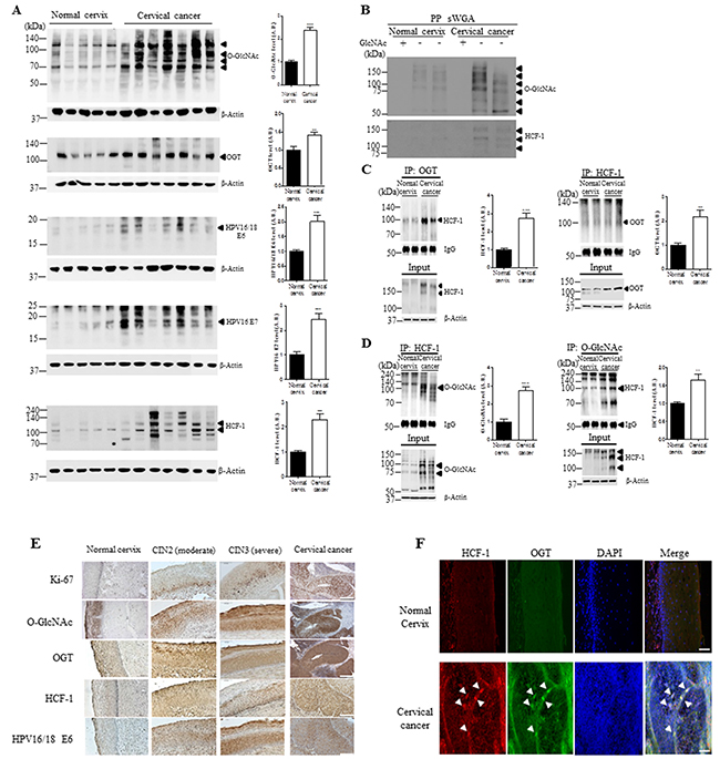 The levels of O-GlcNAcylation, OGT, E6, E7 and O-GlcNAcylation of HCF-1 levels are elevated in cervical cancer tissues.