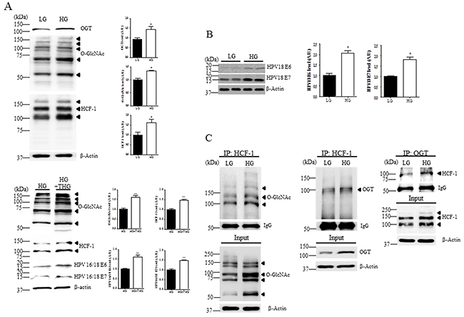 Levels of O-GlcNAc, OGT, HCF-1, E6 and E7 are increased in cervical cancer cells exposed to high glucose.