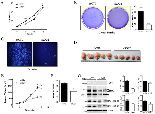 OGT depletion decreases cell proliferation, colony formation, and invasion, and reduces tumor formation in vivo.