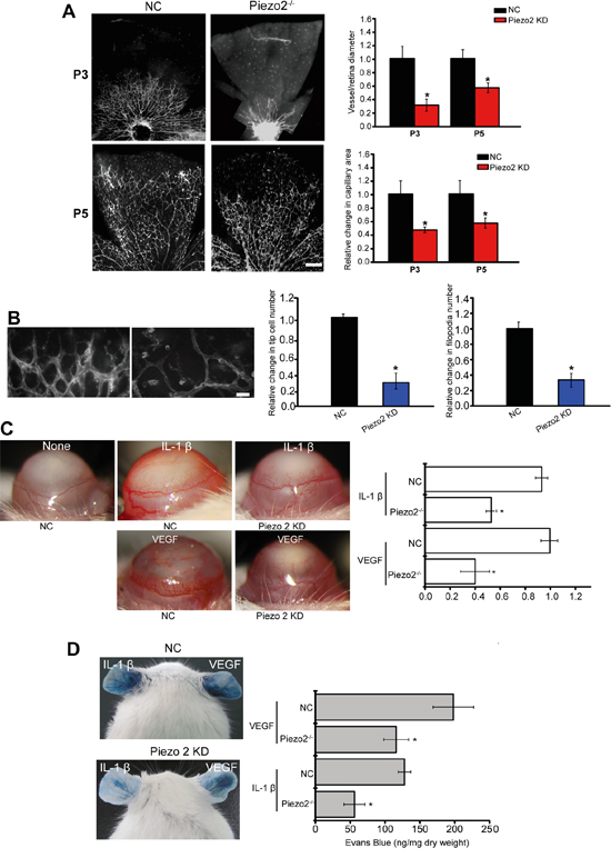 Piezo2 knockdown affects angiogenesis and vascular permeability in vivo.