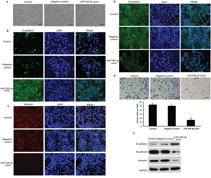 Effects of miR-338-3p overexpression on epithelial-mesenchymal transition (EMT) and invasiveness of hepatocellular carcinoma (HCC) cells.