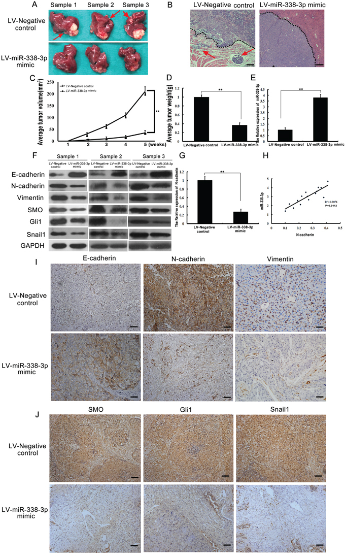 Analysis of miR-338-3p, Smoothened (SMO), Gli1, Snail1, E-cadherin, N-cadherin, and vimentin expression in an orthotopic xenograft hepatocellular carcinoma (HCC) model.